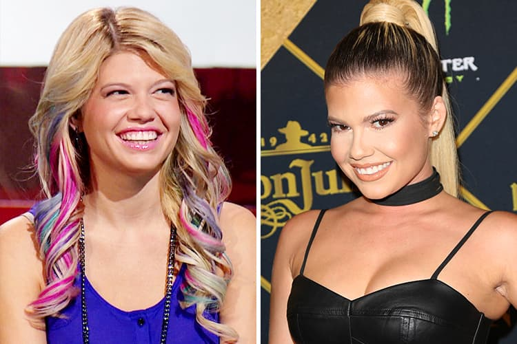 West Coast Plastic Surgery Before And After 1