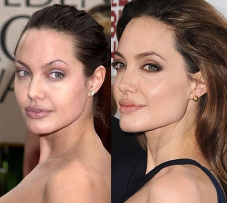 Angelina Jolie Plastic Surgery Before After 1