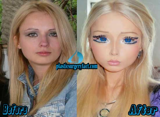 Before And After Body Plastic Surgery Women 1