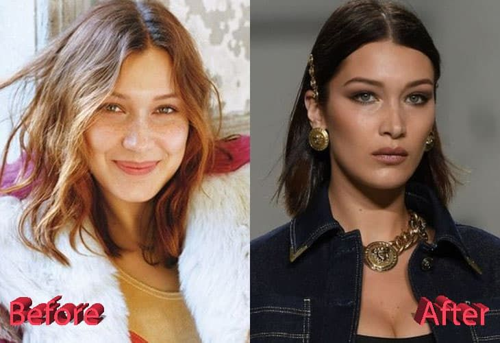 Cheekbones Plastic Surgery Before And After 1