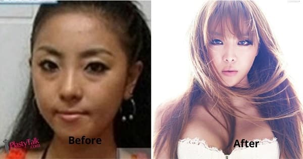 Kpop Group Before And After Plastic Surgery 1