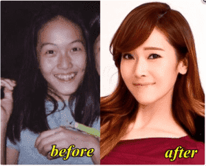 Kpop Jessi Before And After Plastic Surgery 1
