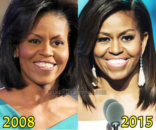 Michelle Obama Before After Plastic Surgery 1