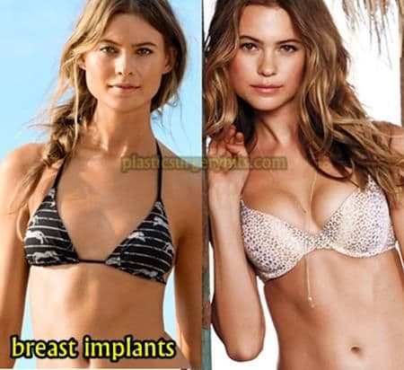 Nina Agdal Plastic Surgery Before And After 1