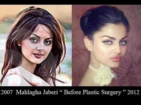 Mahlagha Jaberi Before And After Plastic Surgery photo - 1