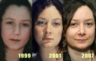 Mellisa Gilbert Before And After Plastic Surgery photo - 1