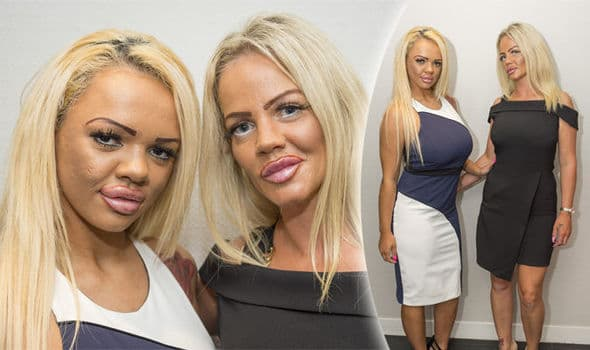 Mother Daughter Plastic Surgery Before And After photo - 1