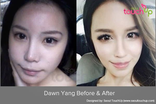 Asian Plastic Surgery Before And After Celebrity photo - 1