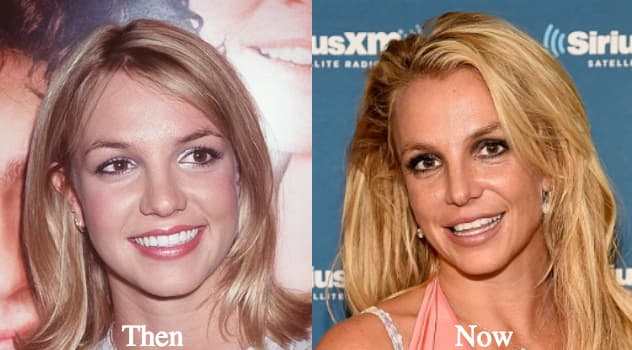 Brittany Spears Before And After Plastic Surgery photo - 1