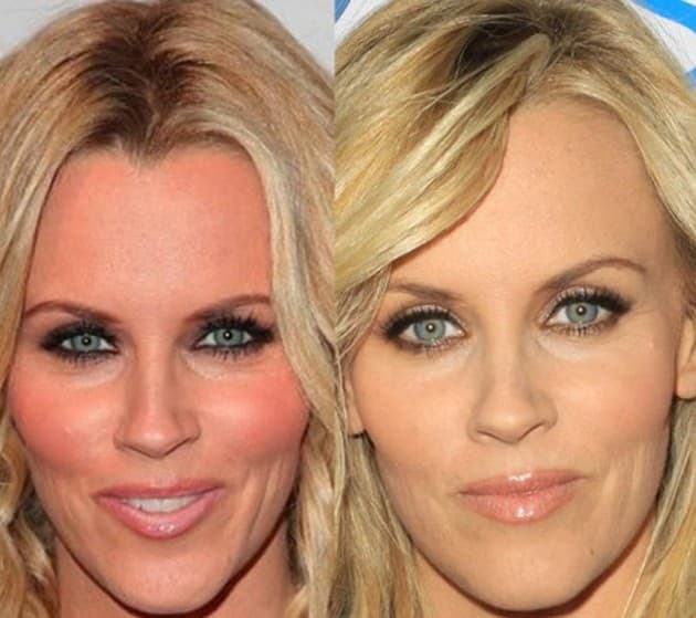 Linda Mccartney Before And After Plastic Surgery photo - 1