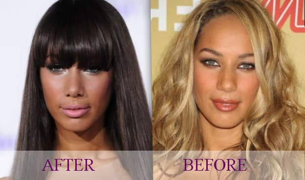 Pamela Anderson Before And After Plastic Surgery photo - 1
