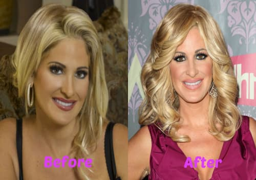Plastic Surgery Before And After Real Housewives photo - 1