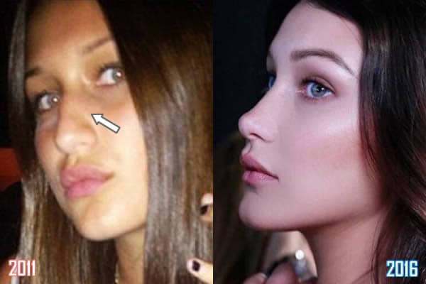 Bella Hadid Plastic Surgery Before And After 1