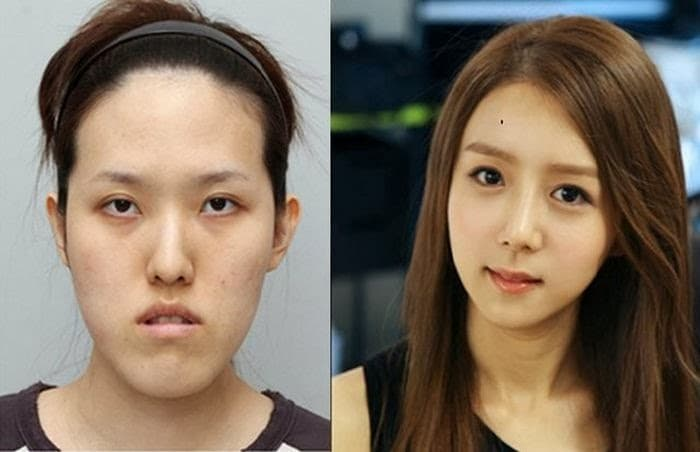 Best Korean Plastic Surgery Before And After 1