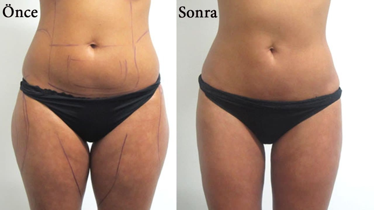 Inner Thigh Plastic Surgery Before And After 1