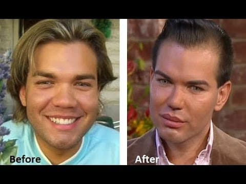 Plastic Surgery In Colombia Before And After 1