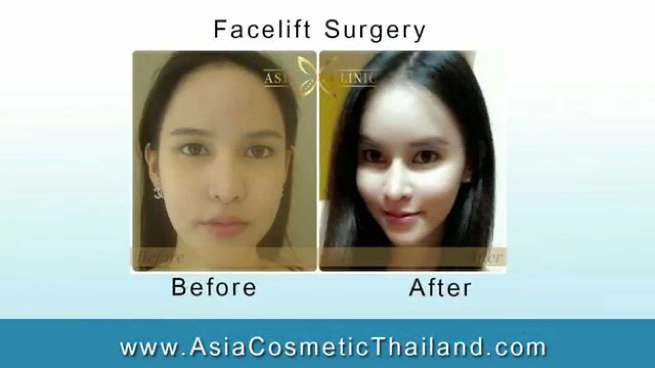 Plastic Surgery In Thailand Before And After 1