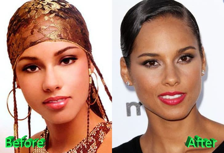 Alicia Keys Before And After Plastic Surgery 1