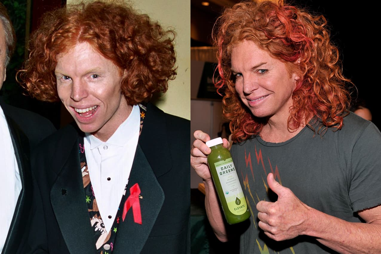 Carrot Top Before And After Plastic Surgery 1