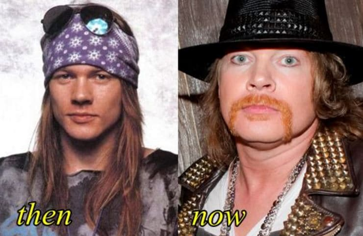 Celebs Plastic Surgery Before And After Pics 1