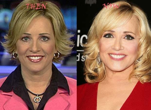Dana Perino Before And After Plastic Surgery 1