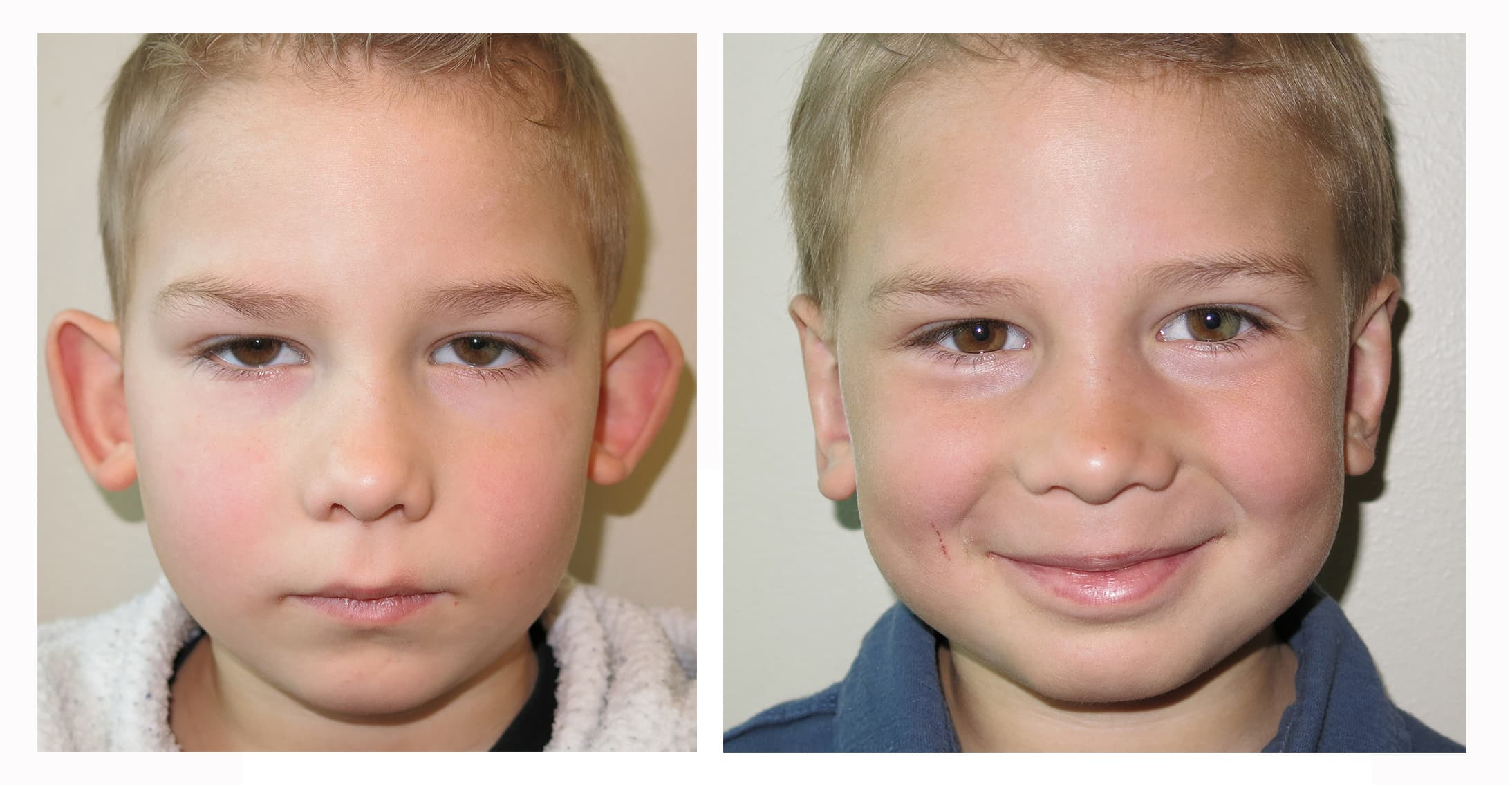 Ear Plastic Surgery Before And After Photos 1