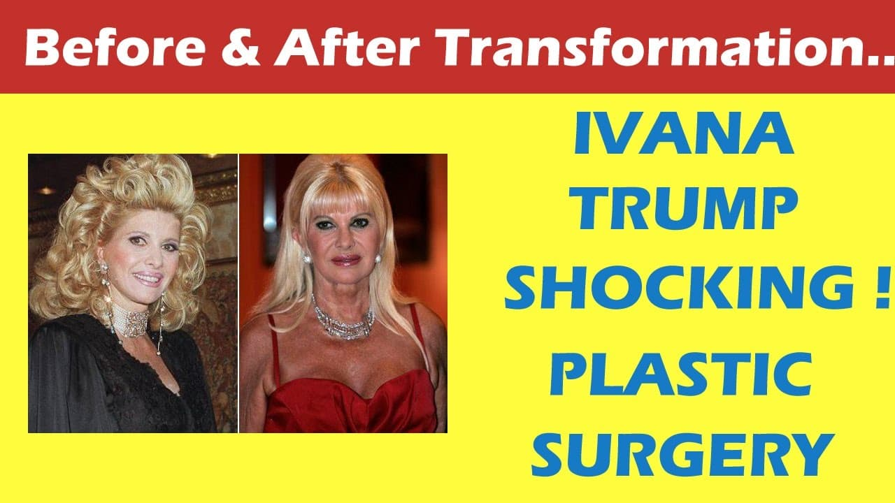 Ivana Trump Plastic Surgery Before And After 1