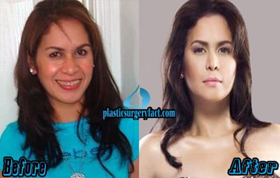 Jinkee Pacquiao Before After Plastic Surgery 1
