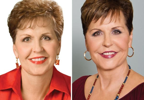 Joyce Meyer Before And After Plastic Surgery 1