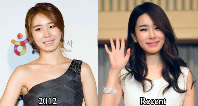 Korean Kpop Plastic Surgery Before And After 1