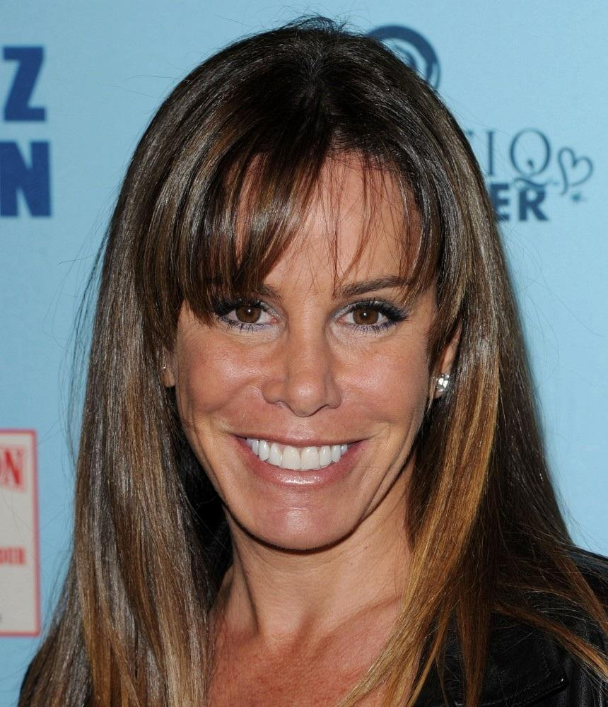 Melissa Rivers Plastic Surgery Before After 1