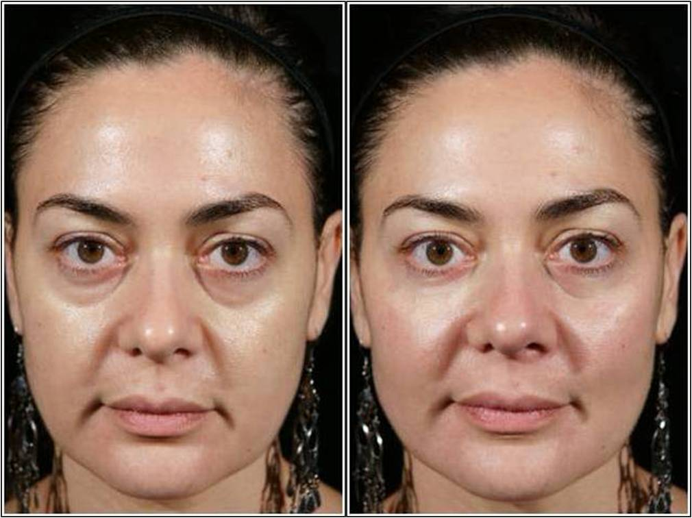 Plastic Surgery Bags Under Eyes Before After 1