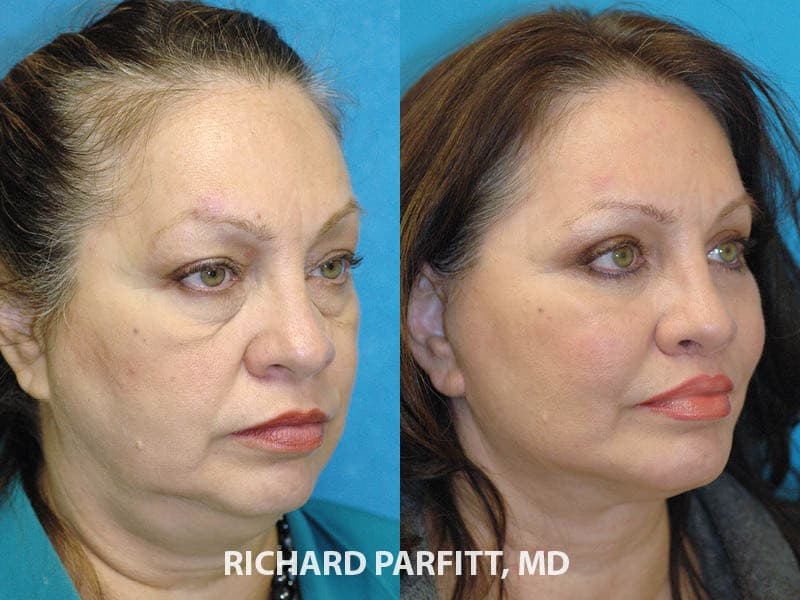 Plastic Surgery Liposuction Before And After 1