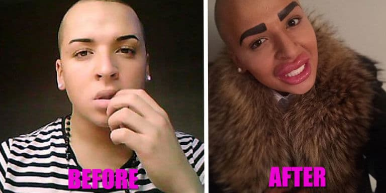 Transgender Plastic Surgery Before And After 1