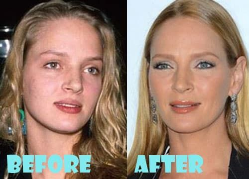 Uma Thurman Plastic Surgery Before And After 1