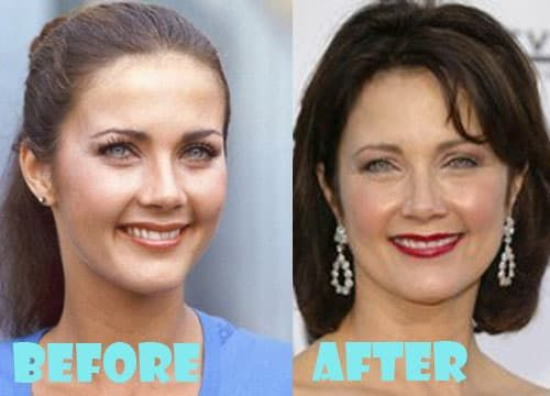 Cheri Oteri Plastic Surgery Before And After 1