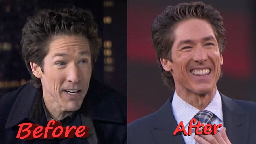 Joel Osteen Before And After Plastic Surgery 1