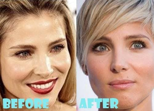 Kate Hudson Before And After Plastic Surgery 1