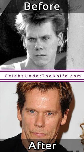 Kevin Bacon Before And After Plastic Surgery 1