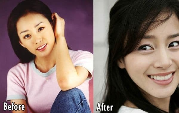 Kim Tae Hee Before And After Plastic Surgery 1