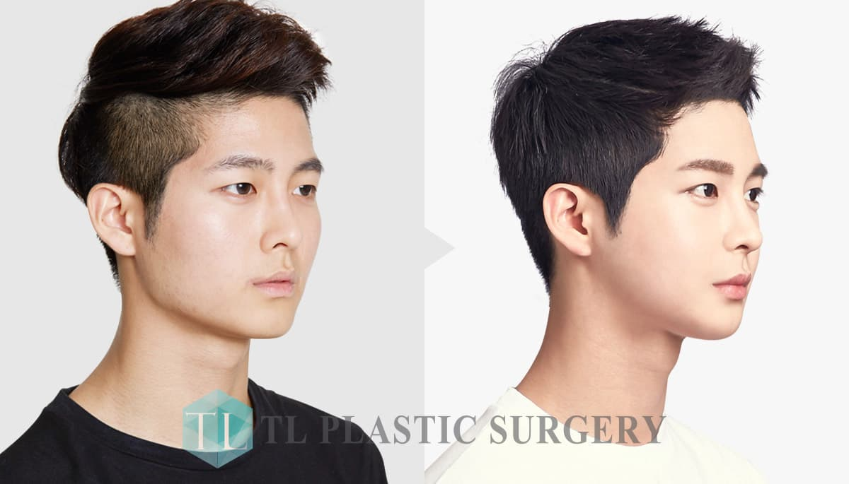 Korean Guys Before And After Plastic Surgery 1