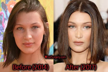 Lea Michele Before And After Plastic Surgery 1