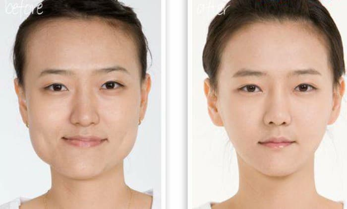 Masseter Muscle Plastic Surgery Before After 1