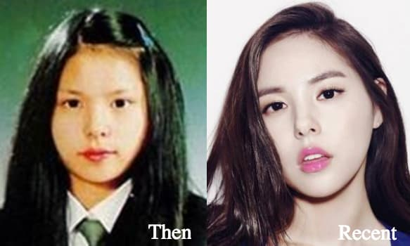 Min Hyo Rin Before And After Plastic Surgery 1