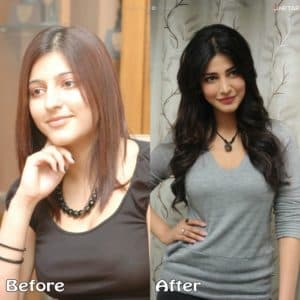 Sruthi Hassan Before Plastic Surgery 1