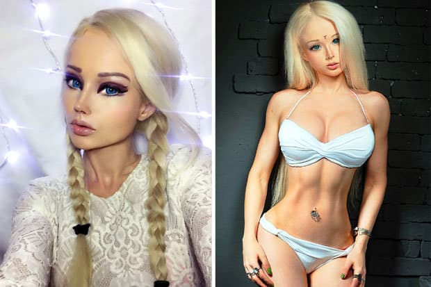 Barbie Plastic Surgery Girl Before And After 1