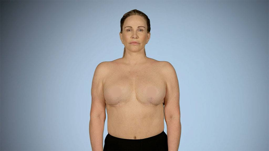 Before And After Nude Breast Plastic Surgery 1