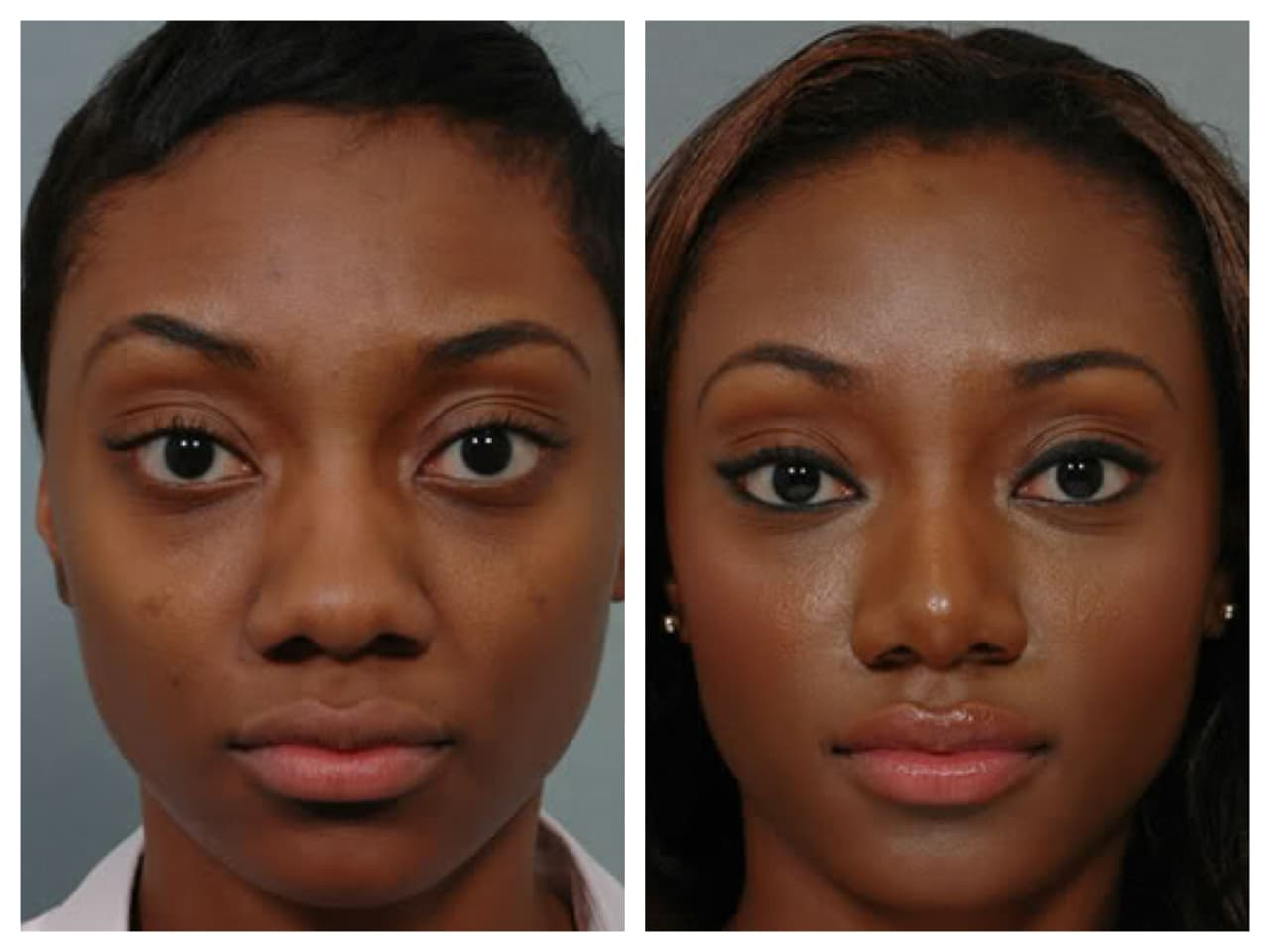 Black Women Before And After Plastic Surgery 1