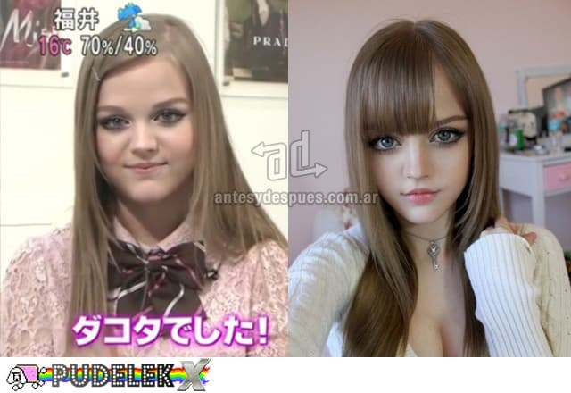 Dakota Rose Before And After Plastic Surgery 1