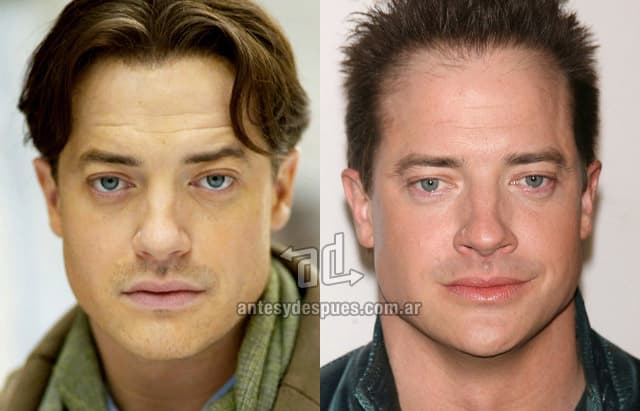 French Rock Before And After Plastic Surgery 1
